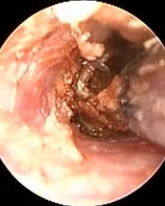 Ear Wax Removal by Microsuction after eardrop use