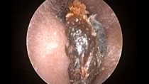 Oto-endoscopic Earwax Removal  : Microsuction Earwax Cleaning