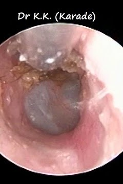 Oto-endoscopic Both Ear Wax Removal by Microsuction – Best Method for Ear Wax Removal
